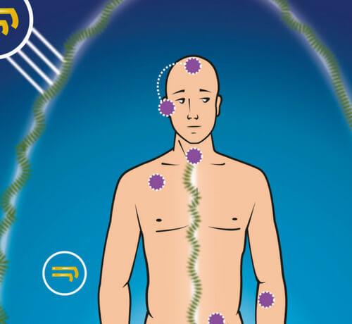 Extracción de implantes y larvas a terceros - Escuela Sol Ahimsa